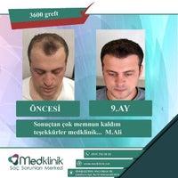 10/25/2017 tarihinde Bay Ajans M.ziyaretçi tarafından Medklinik Saç Ekimi Konya'de çekilen fotoğraf