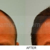 Photo taken at Lam Institute for Hair Restoration by Lam Institute for Hair Restoration on 9/24/2013