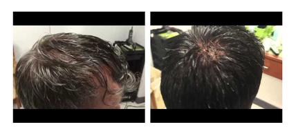 Hair Technique